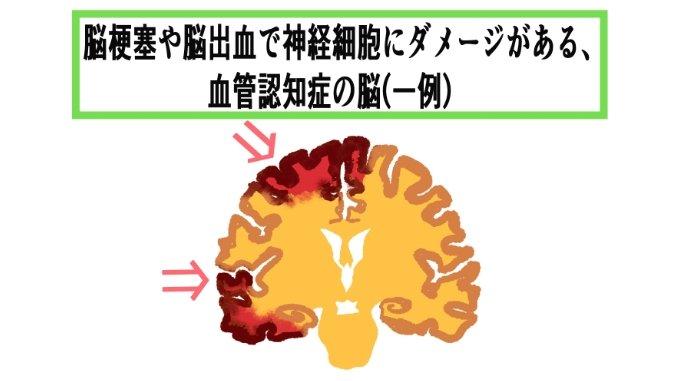 ダメージがある脳のイラスト