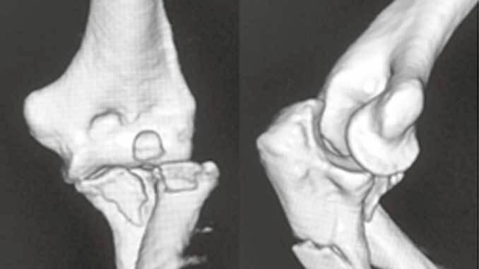 肘関節脱臼[私の治療].jpg